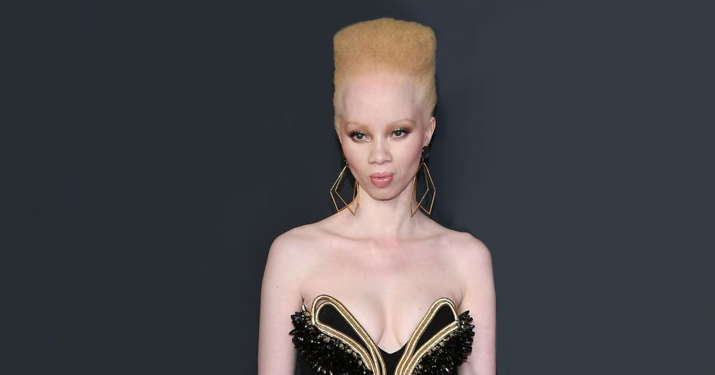 For The First Time Ever, An Albino Model Covered Vogue